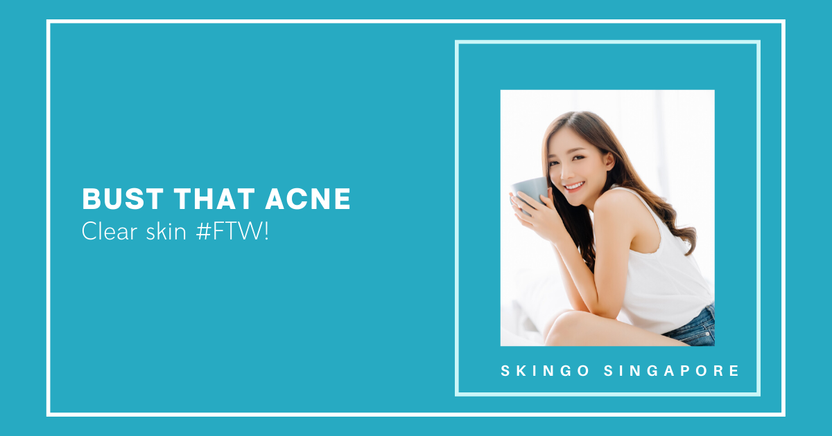 Skin Treatment for Acne